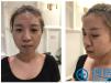找上海有名的网红整容医院上海薇琳医美崔健院长做了双眼皮隆鼻