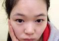 看上海百达丽徐晓婓做的眼睛案例很好看于是我慕名来做了双眼皮