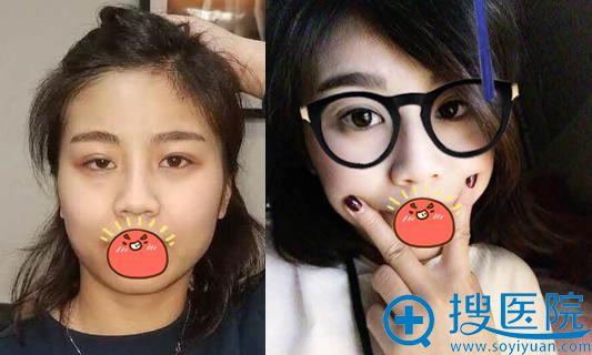 杨仁宝做失败双眼皮修复案例