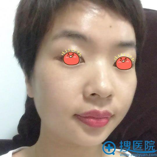 北京佳妍做皮秒祛斑30天效果