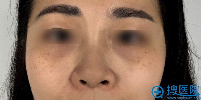 长沙伊百丽激光祛斑效果好吗?分享我在那做激光祛斑24天效果