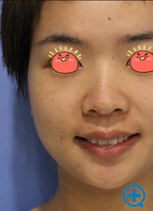 北京佳妍皮秒祛斑怎么样?看我找高红艳做picoway激光祛斑经历