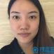妈妈陪我来上海百达丽找原上海九院医生周珍艳做了鼻综合隆鼻