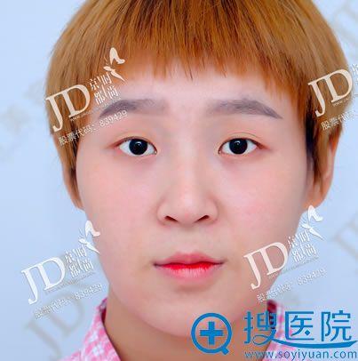 在北京京都时尚整形做双眼皮前
