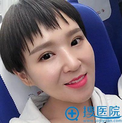北京京都时尚整形双眼皮案例15天效果