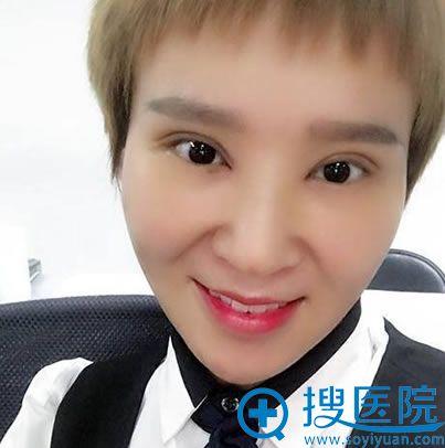 找北京京都时尚谢双灵做眼睛35天后