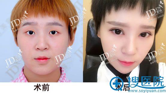 北京京都时尚双眼皮开眼角案例对比图