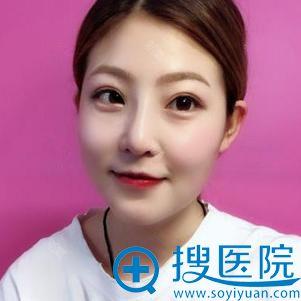 郑州悦美硅胶假体隆鼻案例