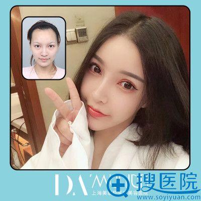 上海美联臣整形医院朱麟医生双眼皮案例