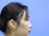 分享我找杭州甄美整形医院王辉做肋软骨鼻综合隆鼻的手术经历