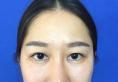 朋友推荐下找南昌一附院杨红华做韩式定点双眼皮颜值真不同