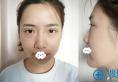 我的御姐范儿是在成都医美刘院长处做假体隆鼻综合整形了