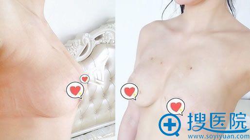 北京韩啸整形侯泽民乳房提升15天效果