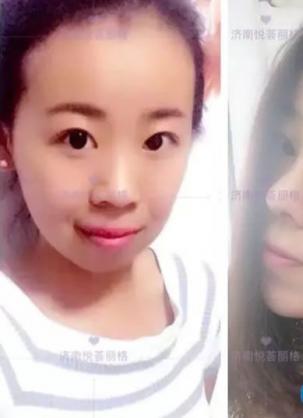员工分享济南悦荟丽格刘顺做双眼皮+肋软骨隆鼻+垫下巴效果图