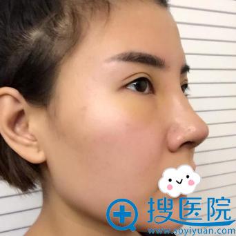 武汉达拉斯硅胶隆鼻+耳软骨垫鼻尖案例