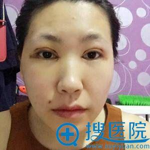 北京精艺吉美刚做完双眼皮图片