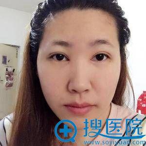 北京精艺吉美谢双灵割双眼皮案例