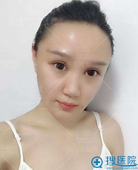 北京联合丽格陈万芳脂肪填充24小时效果