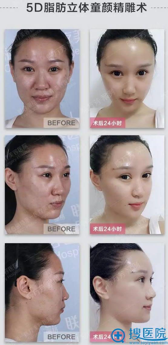 北京联合丽格陈万芳脂肪填充案例对比图