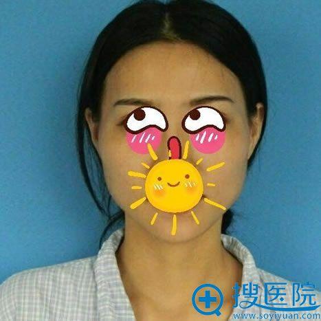 在北京华韩做下颌角手术前