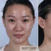 实时记录找北京联合丽格陈万芳院长做全脸脂肪填充24小时变化