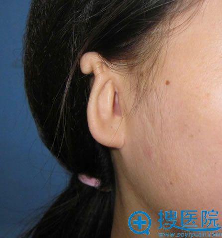 北京做耳畸形矫正术医生名单