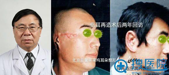 北京庄洪兴主刀的耳再造案例