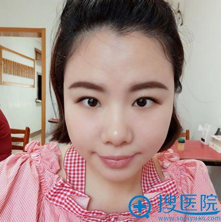 找北京张海明做双眼皮和隆鼻前