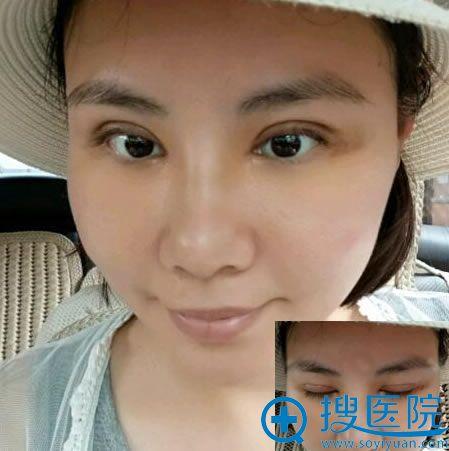 找北京张海明做双眼皮7天照片