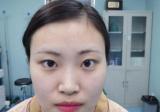 看了西安西京医院整形科孙峰的案例后找肖博医生做了全切双眼皮