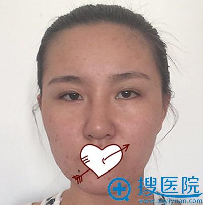 没有在青岛博士做双眼皮失败修复和隆鼻失败修复前的照片