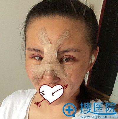 找青岛博士整形肖裴做注射隆鼻失败修复第3天照片