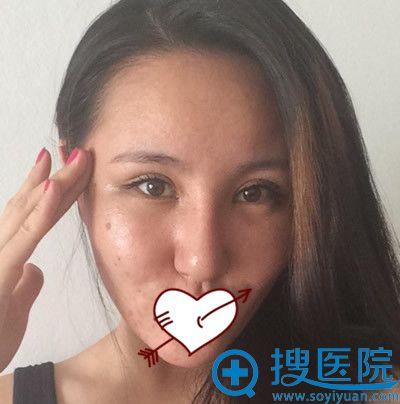 青岛博士整形隆鼻失败修复第9天效果图