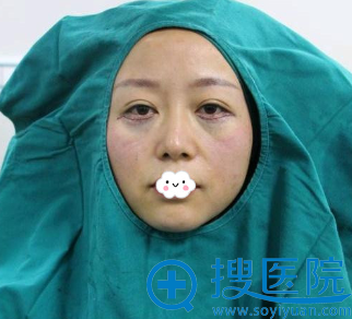 厦门海峡尹卫东外切祛眼袋效果怎么样?有真实案例吗