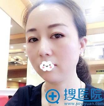 厦门海峡尹卫东外切祛眼袋好吗?恢复效果图片