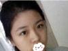 到宁德华美鼻修复基地找原上海九院于海生做鼻综合隆鼻+双眼皮