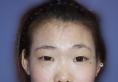 找无锡丽都整形孙守县做硅胶假体隆鼻+双眼皮打造韩式小清新