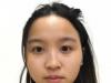 分享我找成都蜀尚蓉雅陈建华做鼻综合隆鼻和歪鼻矫正的亲身经历