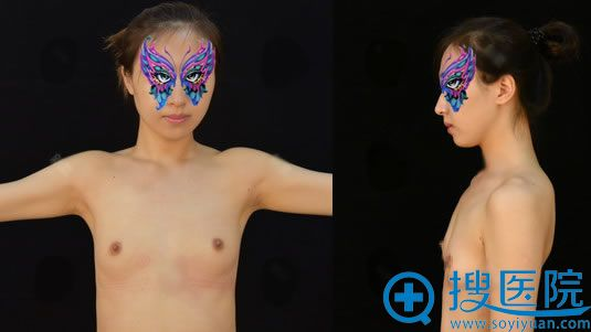在北京薇琳医美做假体隆胸前