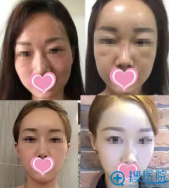 韩国碧夏李珉奭院长脂肪填充案例