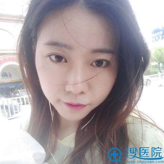 南昌美伊尔徐永丰博士隆鼻案例3个月效果