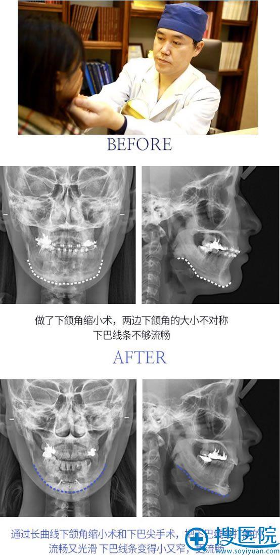 韩国faceline李真秀面部轮廓修复效果