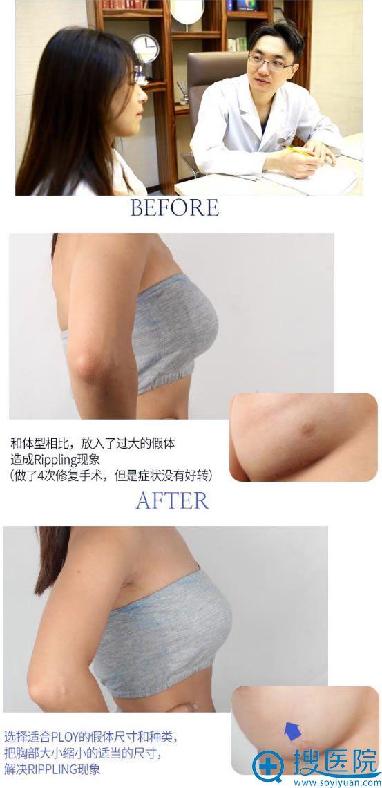 韩国faceline张铉院长胸部修复过程
