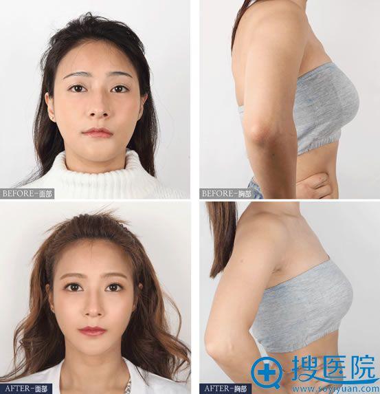 韩国faceline菲斯莱茵轮廓和胸部修复案例