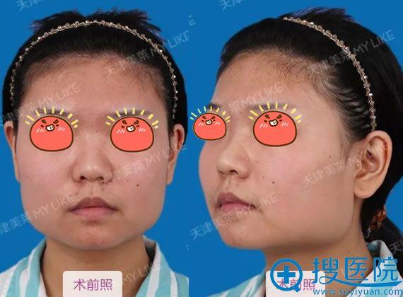 在天津美莱做下颌角改脸型前