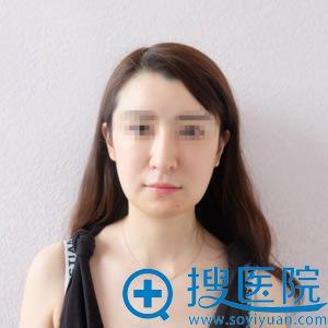 在北京榛红生长因子取出修复7天后