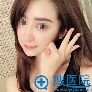 北京榛红黎星面部异物取出案例