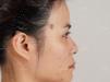 看了重庆华美张国强的案例后找重庆美莱单磊做了自体耳软骨隆鼻