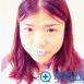 到深圳华美李宁江处做耳软骨复合隆鼻整形术后恢复真实效果图