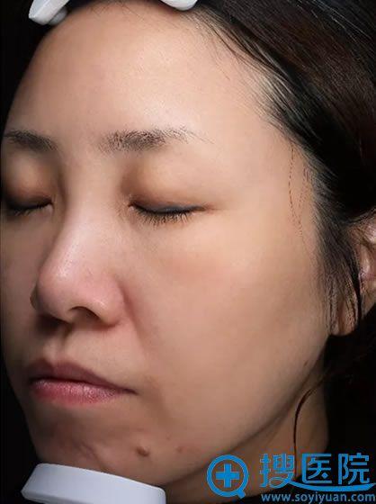 注射瘦脸针15天恢复效果图